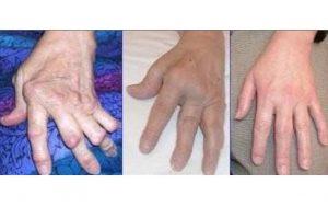 димексид инструкция по применению при артрите