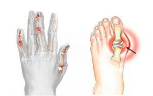 димексид при артрите