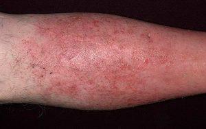 димексид при рожистом воспалении