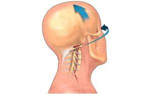 Димексид при шейном остеохондрозе