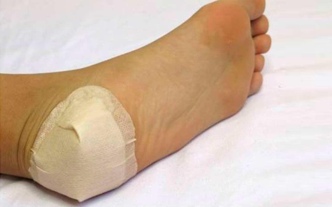 Пяточная шпора – диагностика и лечение