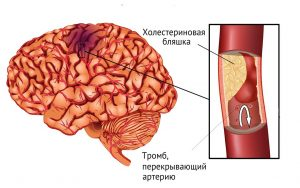 Применение димексида после инсульта