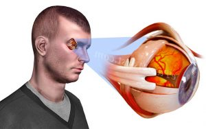 димексид противопоказания при глаукоме