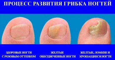 Димексид при артрозе коленного сустава отзывы платное мрт плечевого сустава минск