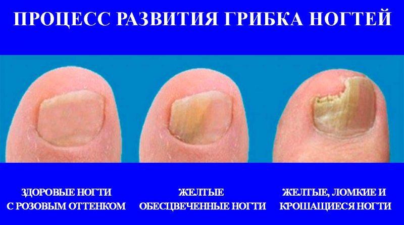 димексид при грибке ногтей